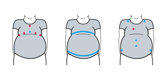 ObeSense: un t-shirt «intelligent» pour combattre l'obésité