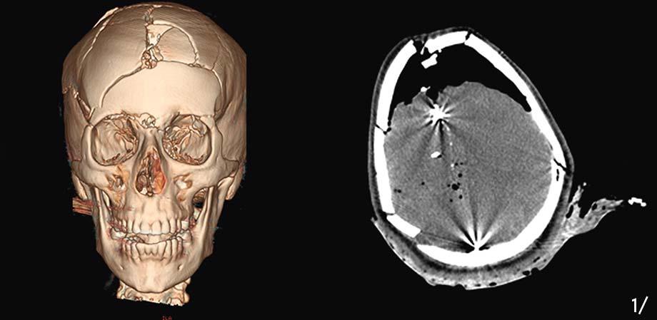 Oral and maxillofacial radiology