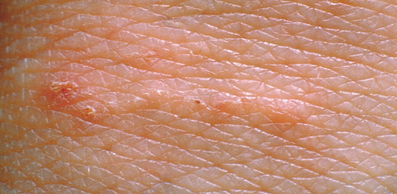 gale maladie de peau photo